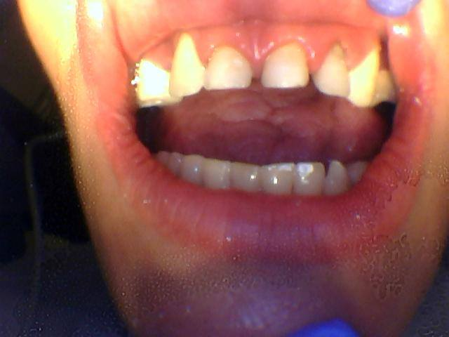 Person with wide gaps between teeth