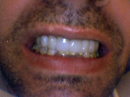 Person with restored teeth