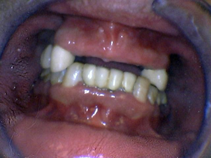 Person with several missing teeth