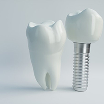 A titanium dental implant standing next to a model of a tooth.