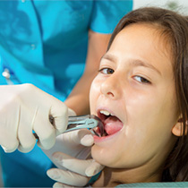 Child having tooth removed