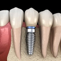 single dental implant post with crown in the lower jaw