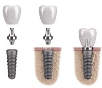 single dental implant post, abutment, and crown being placed in the jaw
