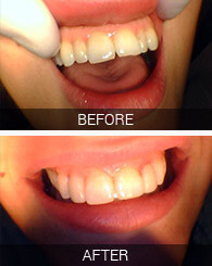 Before and after of patient's teeth