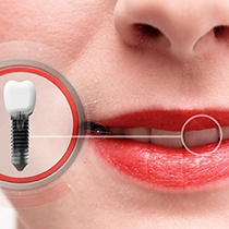 Woman with dental implant replacing front tooth.