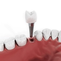 Digital model of a single unit dental implant.