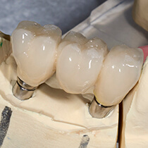 model of implant retained crown and bridges