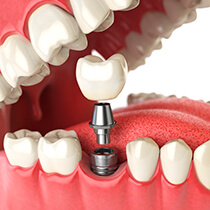 Astoria Dental Implants animation