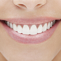 Astoria Cosmetic Dentist lady with pearly white teeth