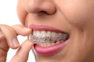 Woman putting in an Invisalign tray
