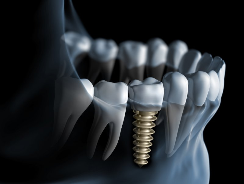 Dental implants in Astoria