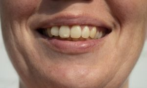 close-up of a person smiling with white spots on teeth in Astoria